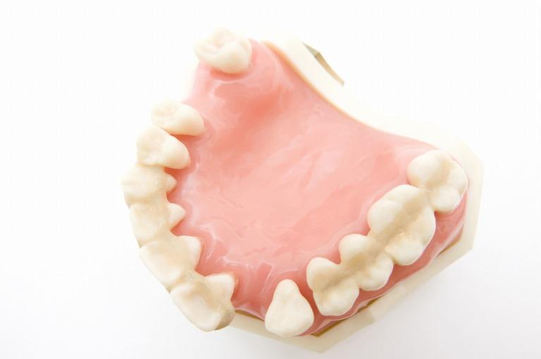 歯周内科治療の意義