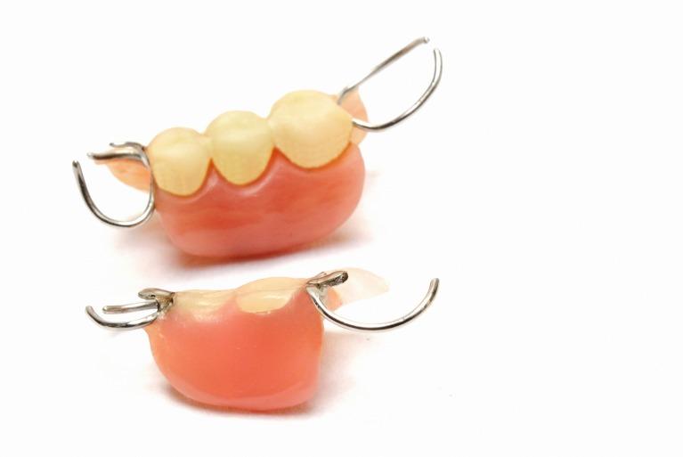 訪問歯科診療でできる治療